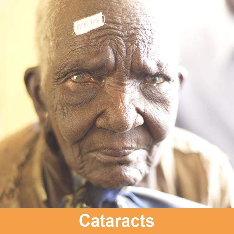 Cataracts_AB